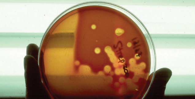 Streptococcus culture on blood agar