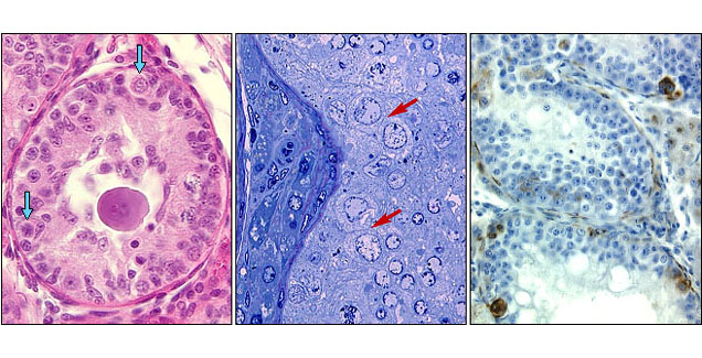 In situ carcinoma cell