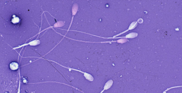 equine sperm under magnification